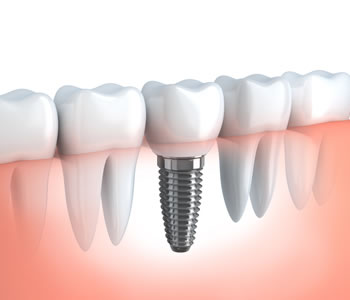 Dental Implants, Replacing a Tooth