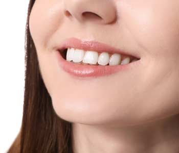 Cosmetic Dental Care in Fort Worth TX area Image 2