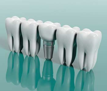 Does Insurance Cover Dental Implants in Fort Worth TX area