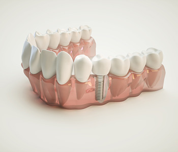 Single Tooth Implant in Fort Worth area
