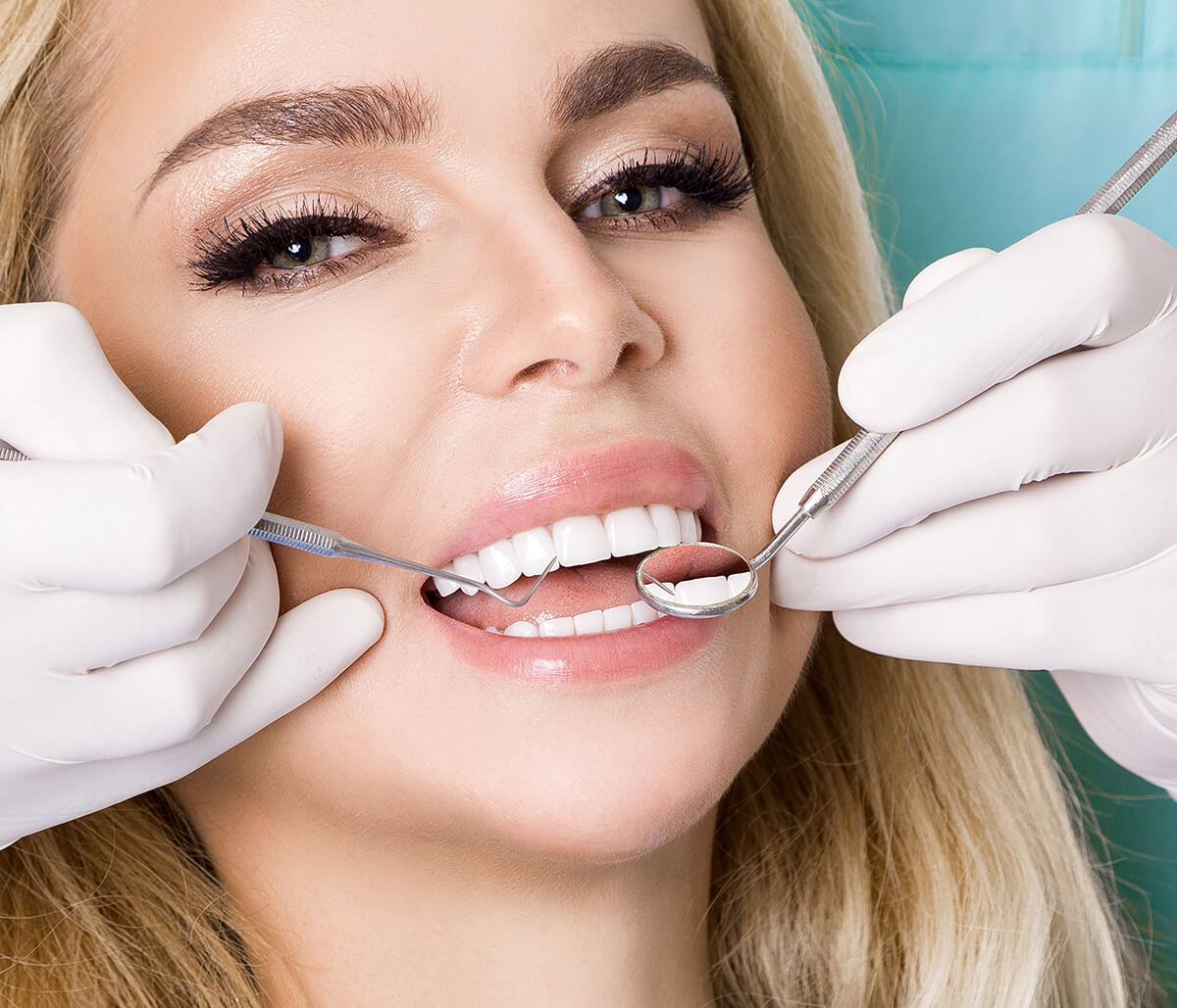 Teeth Filling at Sycamore Dental in Fort Worth TX Area