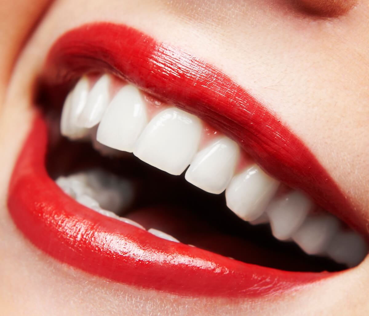 Cosmetic Treatments for Teeth: Small Steps in Fort Worth Area Make a Big Difference in Your Appearance, Confidence