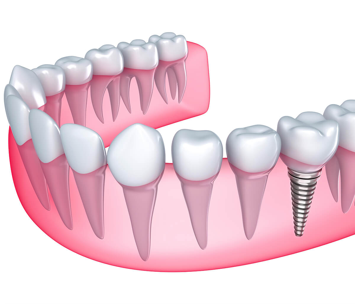Steps to Replace a Tooth, a Mouthful of Teeth with the Dental Implant Procedure in Fort Worth, TX Area