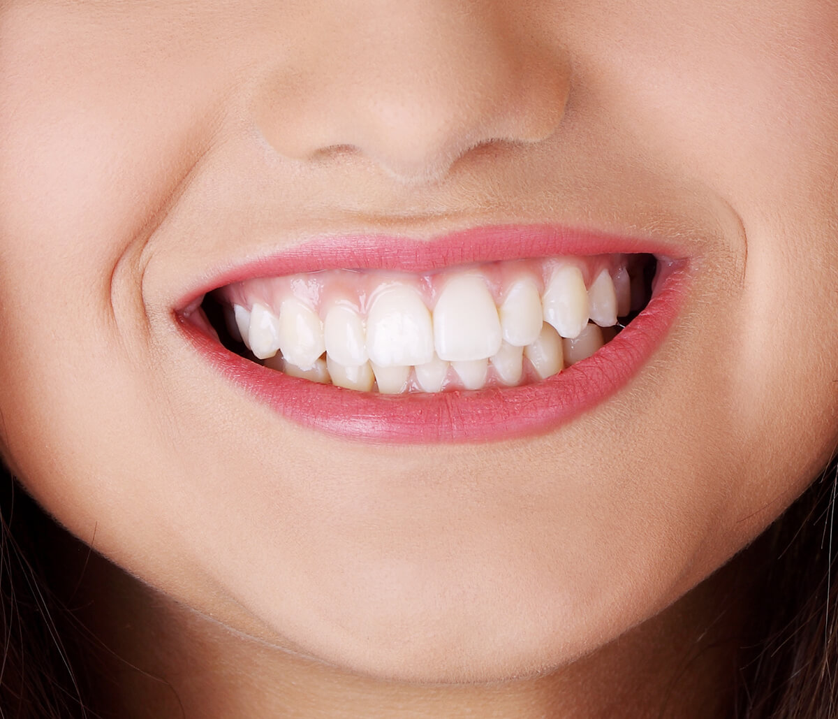 Professional Dental Whitening Treatment for Teeth Fort Worth TX Area