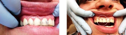 Worth, TX dentist Dr. Vidya Suri patient General Dentistry Before and After pictures