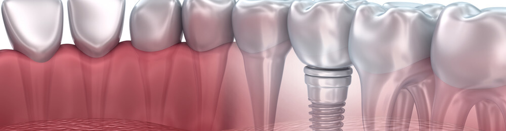 Human Dental implant